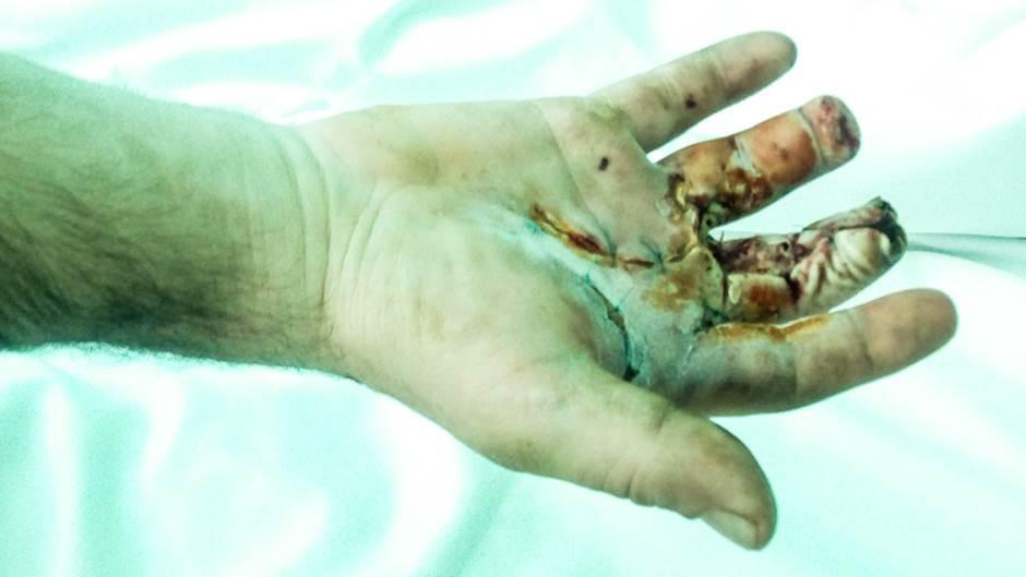 Povreda šake kod pacijenta Anđelka Lugonje