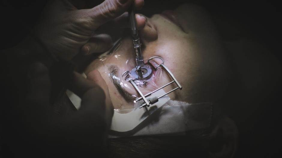laserska operacija oka, klinika svjetlost