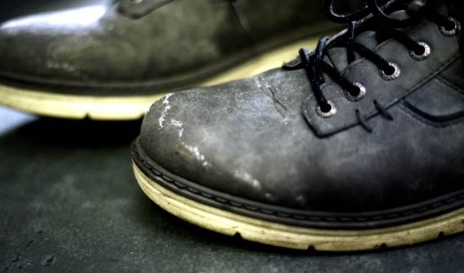 cipele koje je nagrizla so