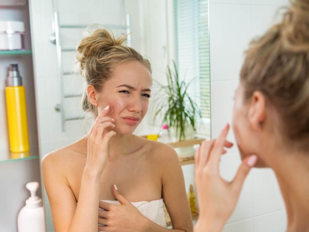 zena se gleda u ogledalu lice bubiljice